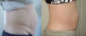 ME! 4 Ultimate Body Applicators over 6 weeks time.